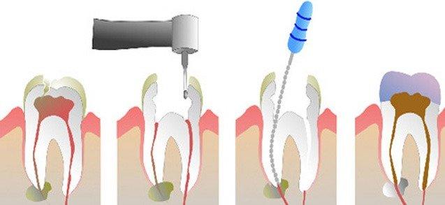 Terapie si endodontia