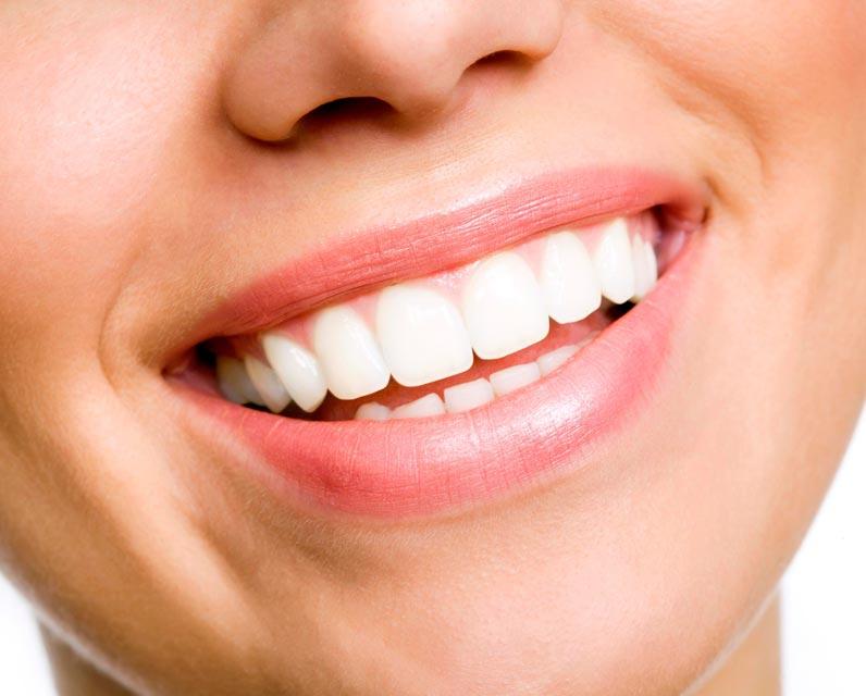 7 sfaturi care va pot ajuta dintii sa ramana albi si sanatosi in perioada sarbatorilor de iarna