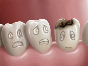 Ce sunt cariile dentare si cum pot fi ele prevenite?